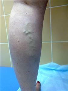I стадия: внутрикожный варикоз (телеангиоэктазии) II стадия: подкожный варикоз (ретикулярные вены)