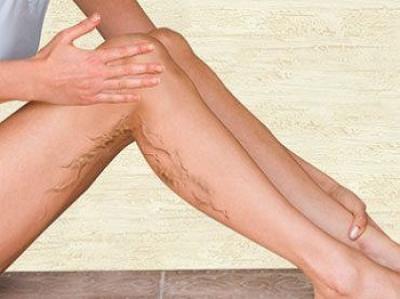 Factori de risc varice, cum de a elimina vene spider la picioarele tale acasă?